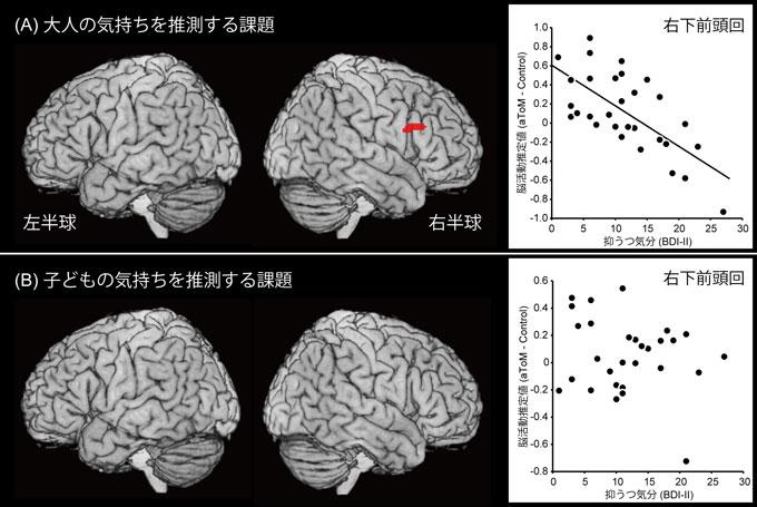 図2 大人または子どもの気持ちを推測する課題時に選択的な脳活動と抑うつ気分の間で関連を示した脳領域