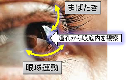 図1 目の動きと眼底観察