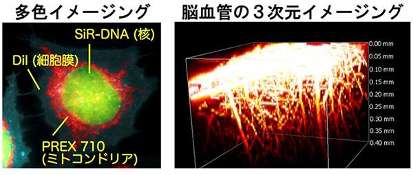 図3 PREX 710を用いた蛍光イメージングの例