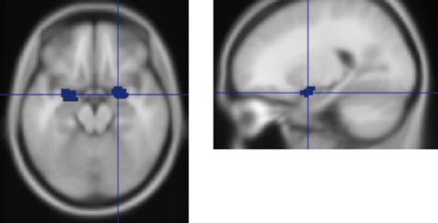 図2 扁桃体の位置 上側、横側から見たMRI像