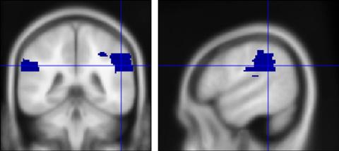 図3 側頭・頭頂接合部の位置