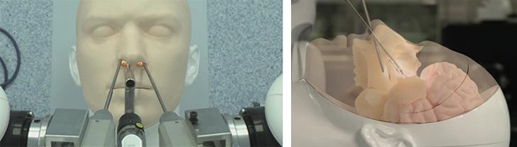 図1 経鼻内視鏡手術を想定したスマートアームの操作(バイオニックヒューマノイドを用いた 評価と透視イメージ)
