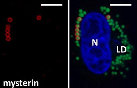 図1 ミステリンは細胞内に直径1μmの球状構造を形成する