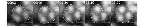 図3 生後15日マウスの網膜細胞核の動的変形のライブイメージング
