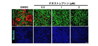 図4 FoxM1阻害薬がAtoMの破骨細胞分化を阻害する